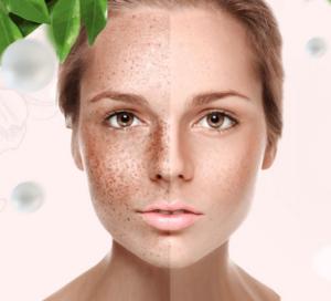 Co to jest Lumiskin Collagena? Stostowanie i skład