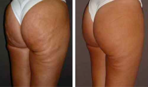 Czy Perfect Body Cellulite można kupić w aptece?