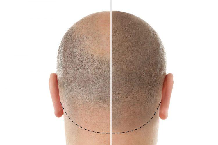 Co to jest Hairstim? Stosowanie i skład